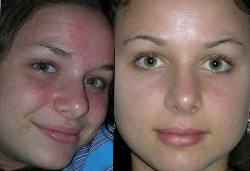 Дезинкрустация лица: до и после