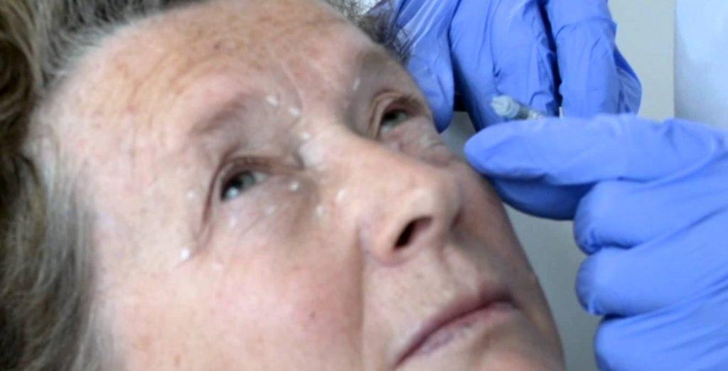 Лечение блефароспазма