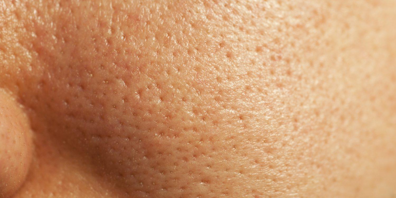 Поры лица начинают дышать после креотерапии