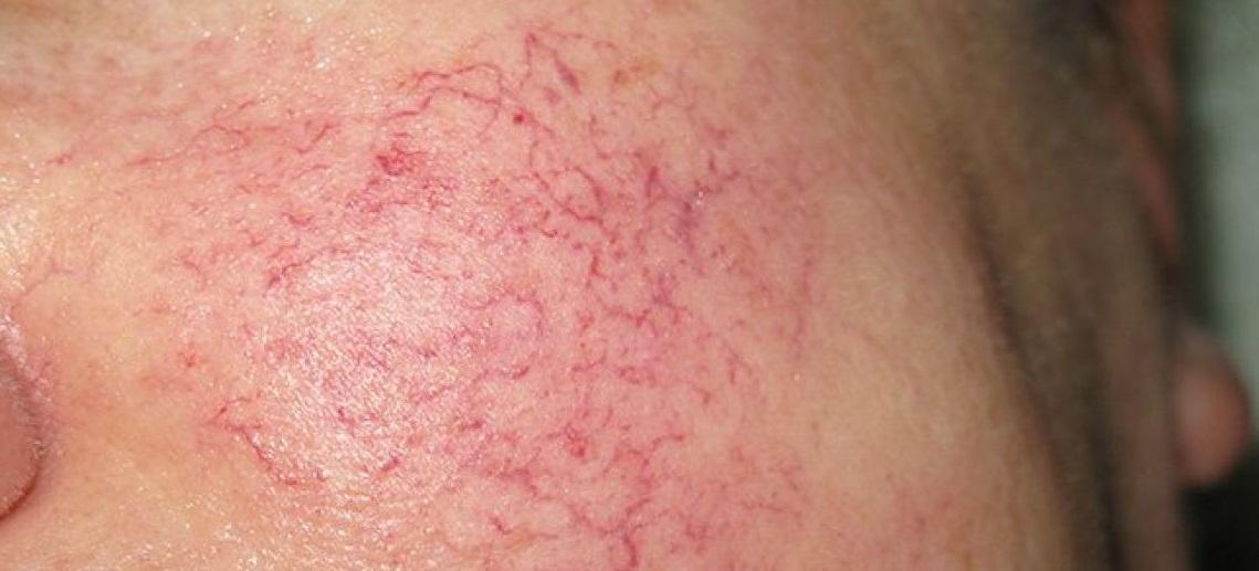 При куперозе на лице (куперозной коже) дарсонвализацию проводить не рекомендуется