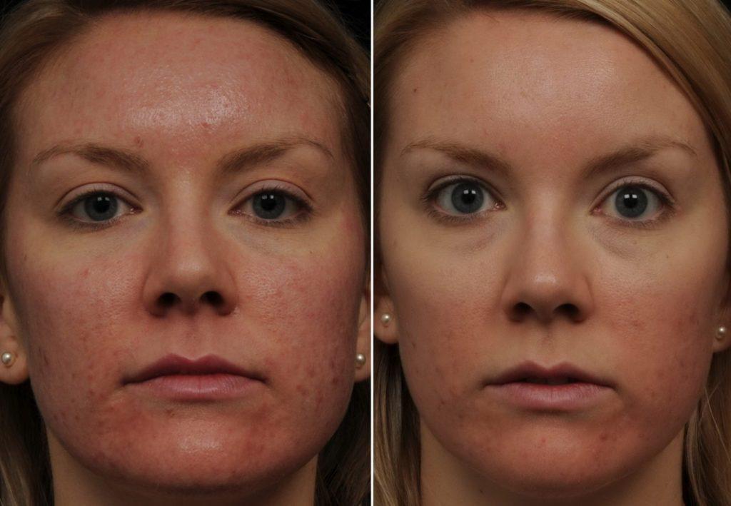 Озонотерапия кожи лица фото ДО и ПОСЛЕ