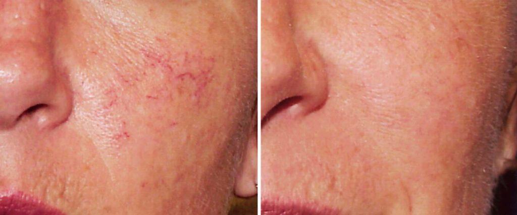 На фото видно, что просле процедуры озонотерапии купероз на лице уменьшился