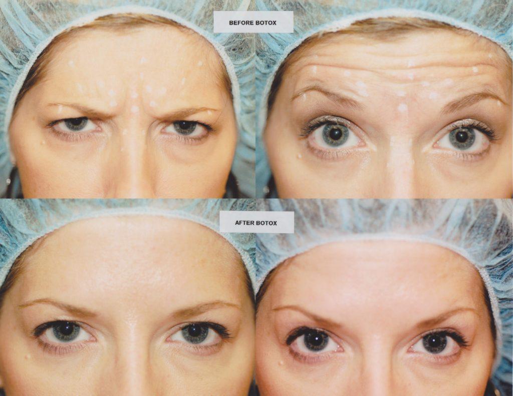 ФОТО: до и после уколов ботокса