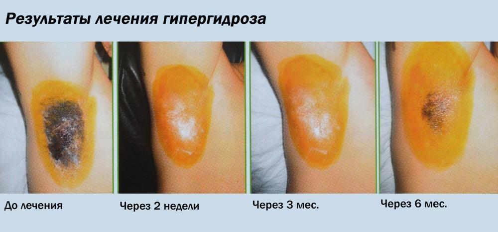 Результаты лечения гипергидроза ботоксом