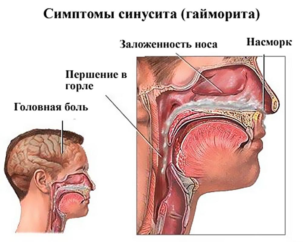 Гайморит хронический симптомы и лечение в домашних условиях