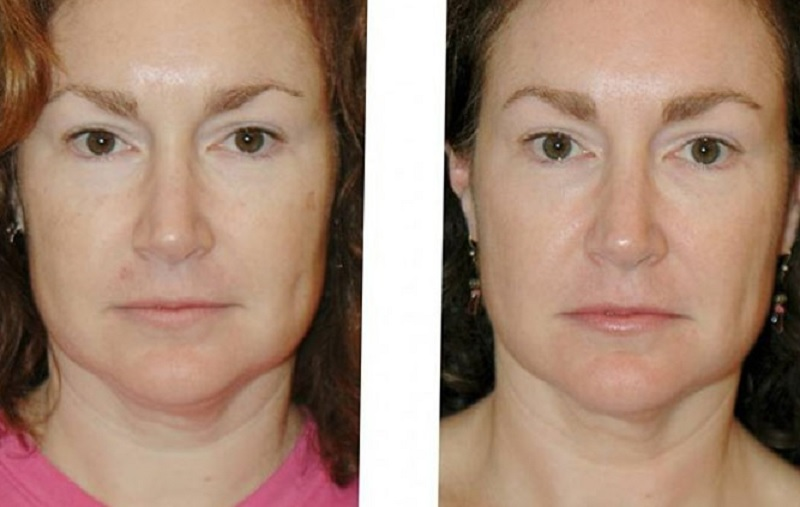 Термаж лица - очевидное улучшение