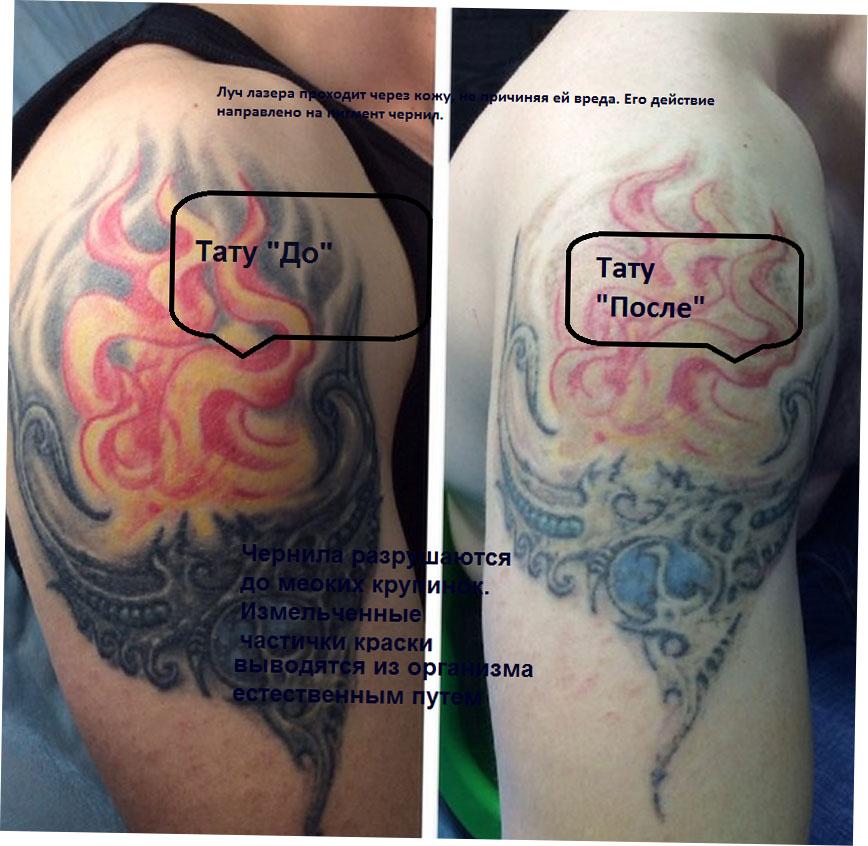 Выведение тату с помощью эрбиевого лазера