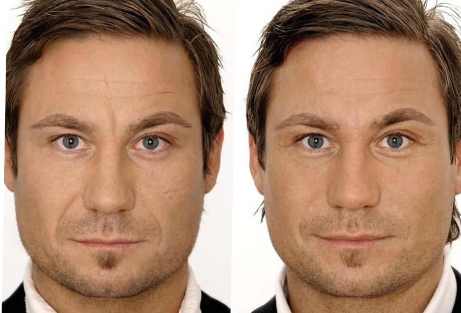 Контурная пластика лица для мужчин также доступна