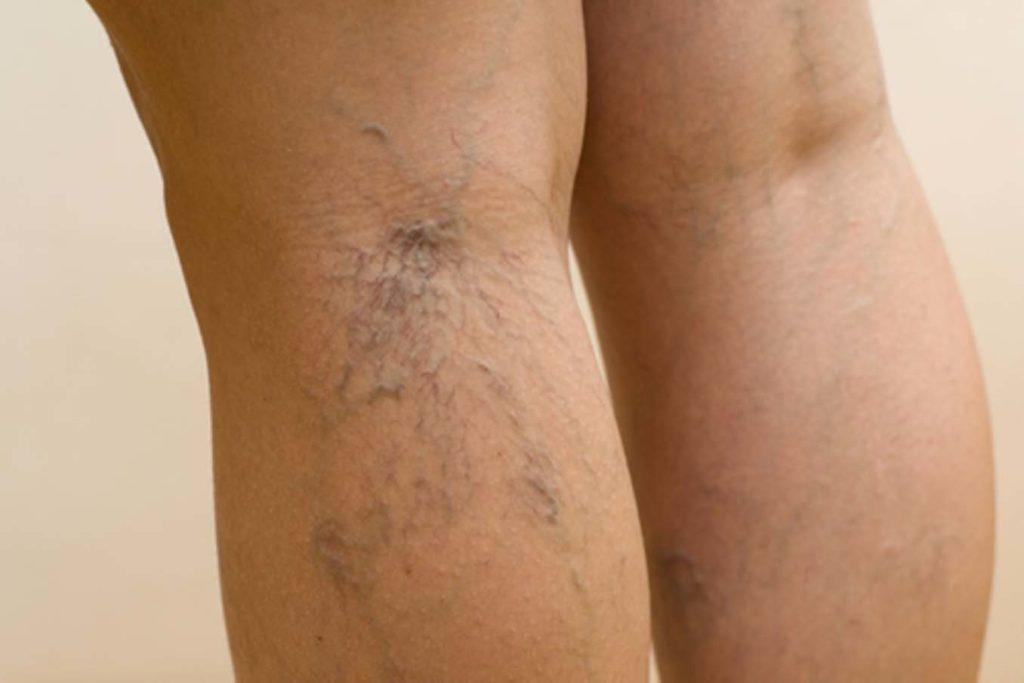 Одно из показаний к лимфодренажному массажу ног - это варикоз