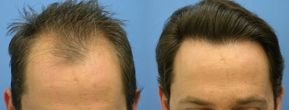 Алопеция и пересадка волос