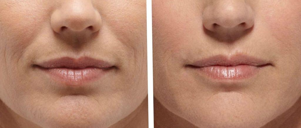 Belotero позволяет увеличить объем губ