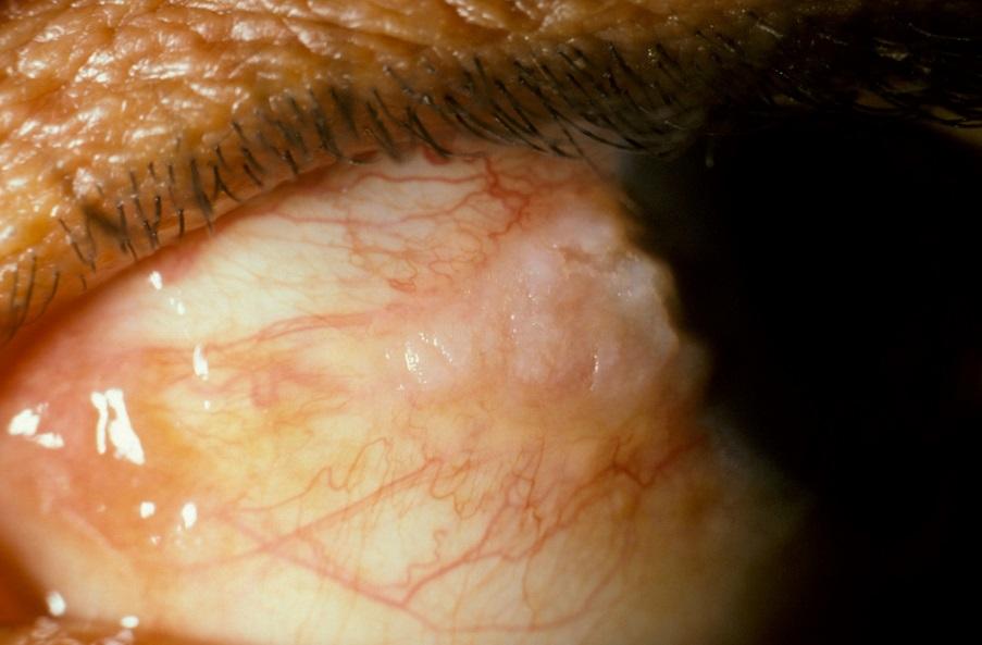 Болезнь Боуэна на слизистой глаза