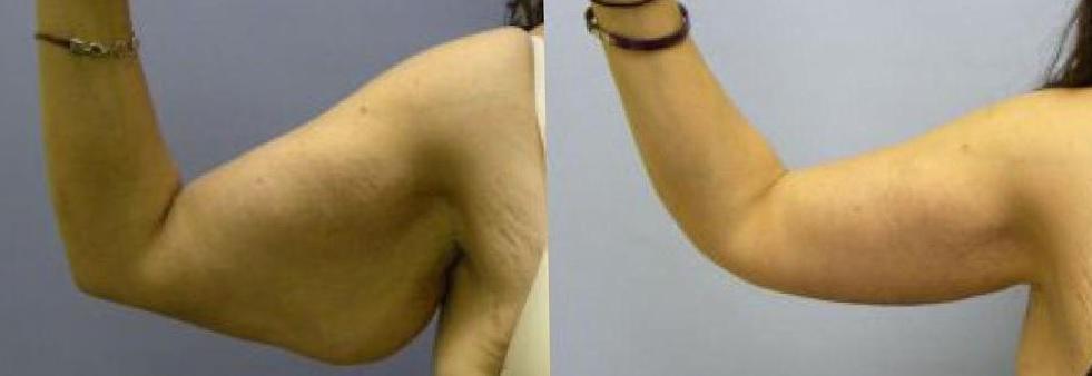 Брахиопластика - подтяжка кожи рук