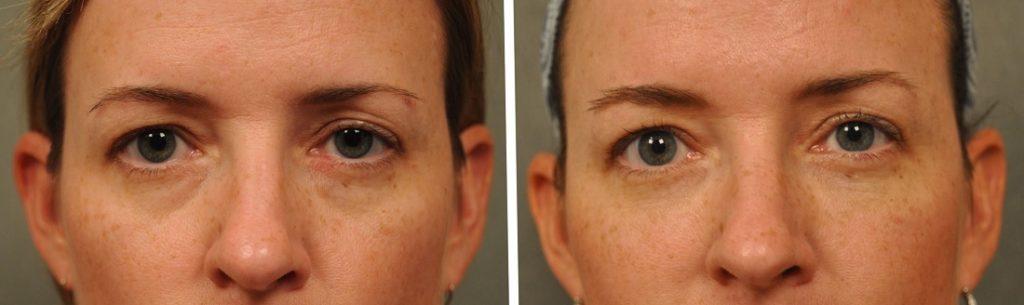 Редермализация — инновационная безоперационная методика борьбы с мешками под глазами, в основе которой лежит инъекционное введение в кожу пациента препарата гиалуаль.