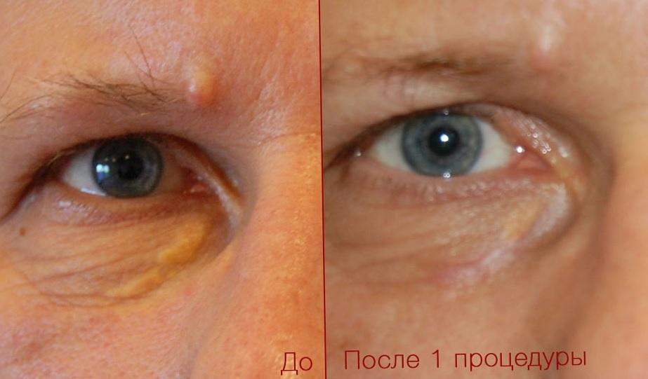 Ксантелазма вокруг глаза - лечение лазером