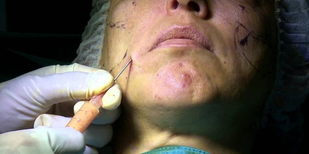 Липофилинг лица - альтернатива пластике