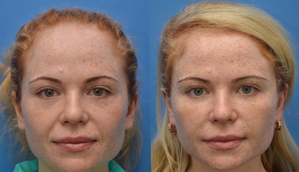 Липофилинг лица - результат