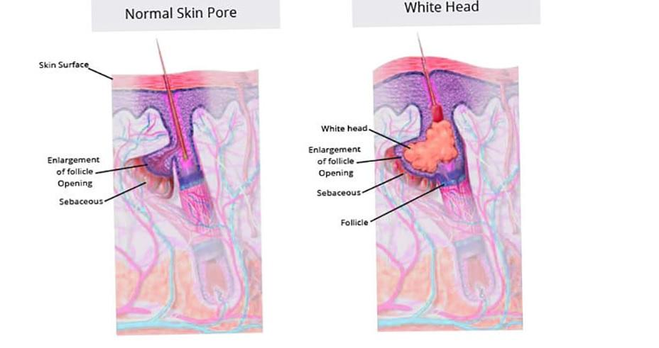 В отличии от угрей, которые имеют свойство созревать и вскрываться, просянка остается под кожей