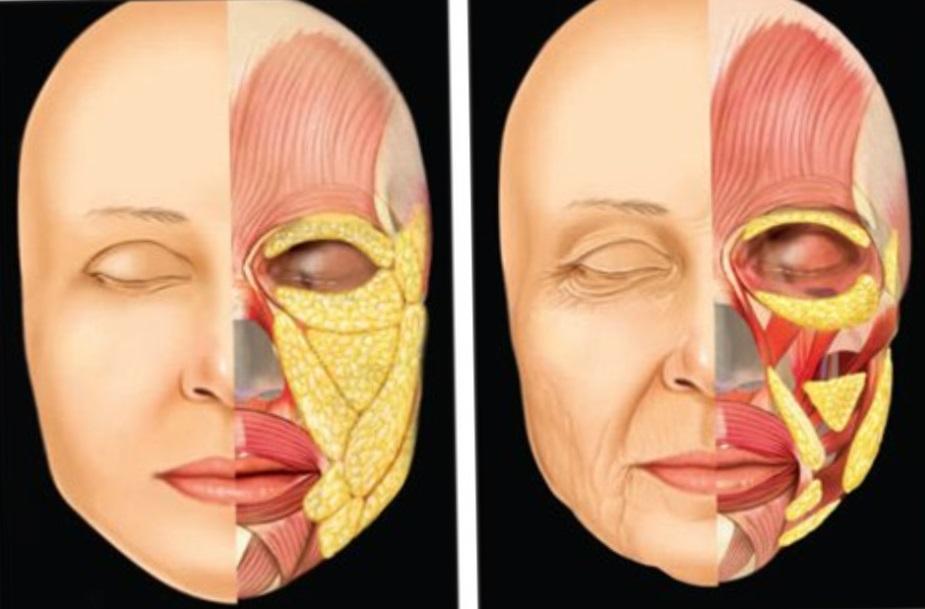 Возрастные особенности, ведущие к обвисанию кожи, появлению морщин