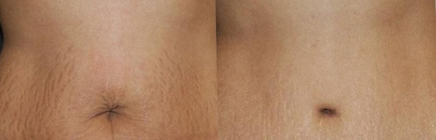 до и после умбиликопластики