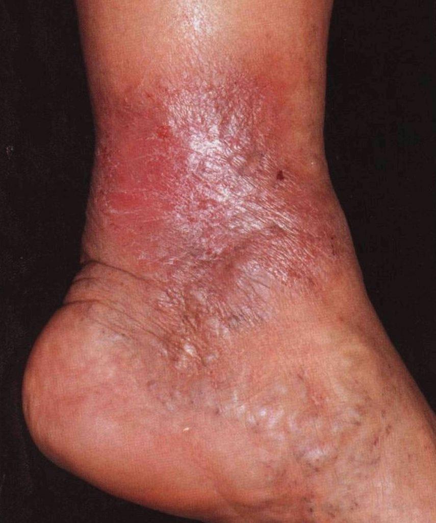 мастоцитоз на ноге