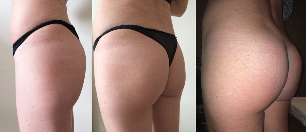Поэтапное увеличение ягодиц - никаких шрамов