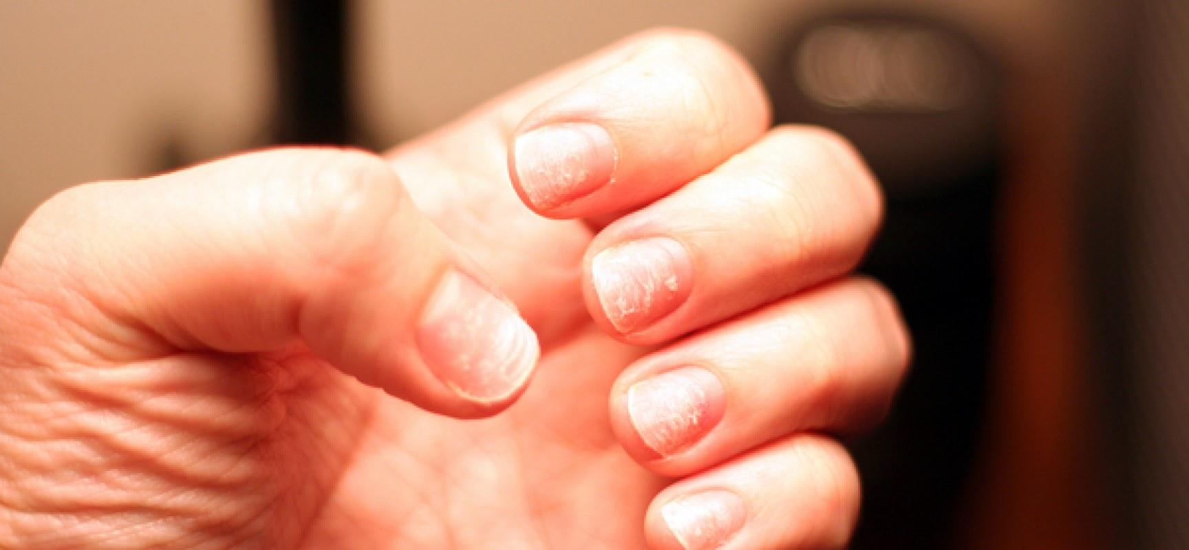 Как вылечить псориаз ногтей в домашних условиях?