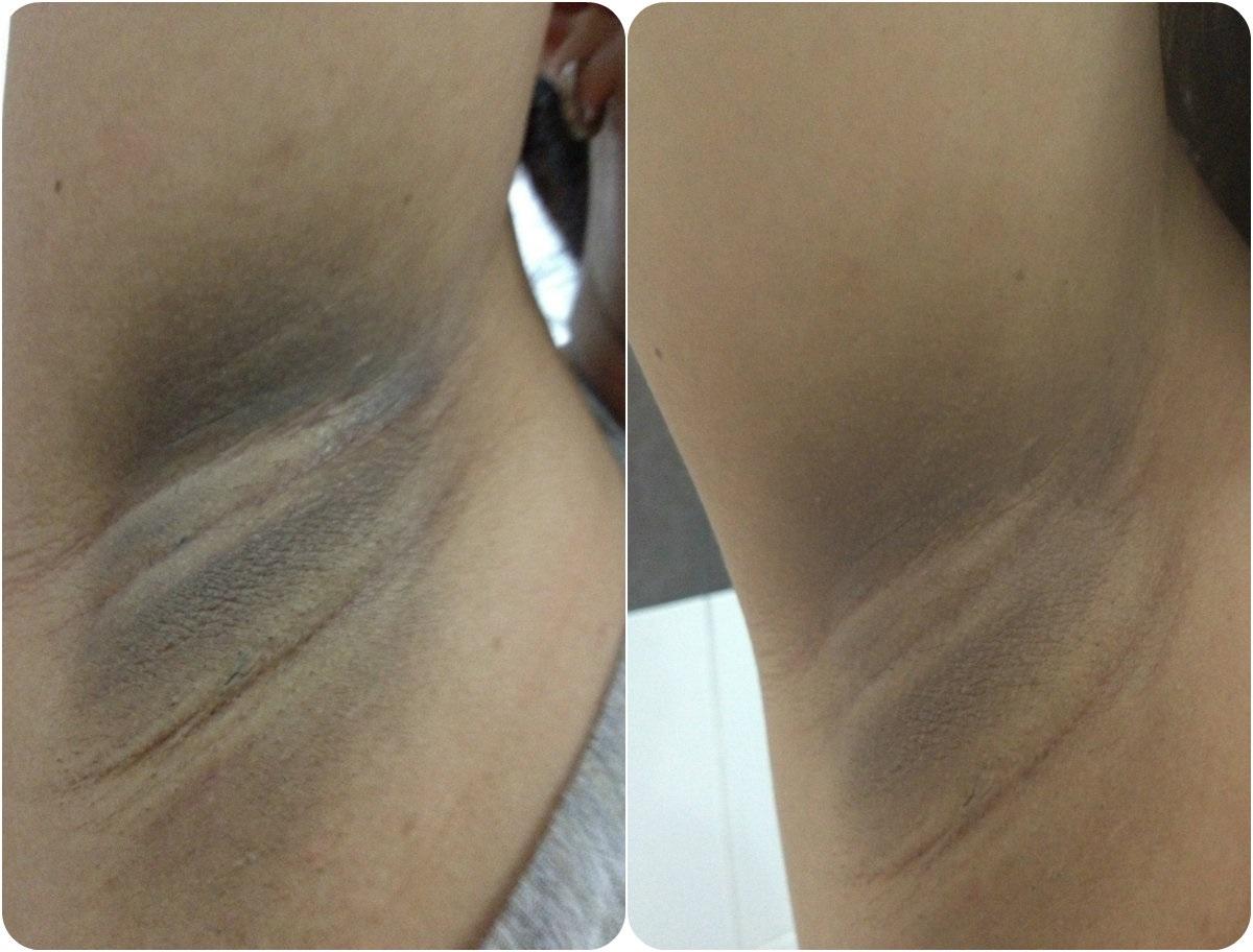 Отбеливание кожи в интимных местах чем отбелить зону между ног