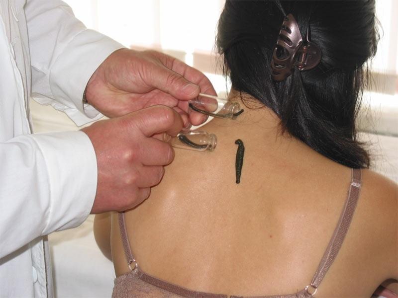 Гирудотерапия против пастозности