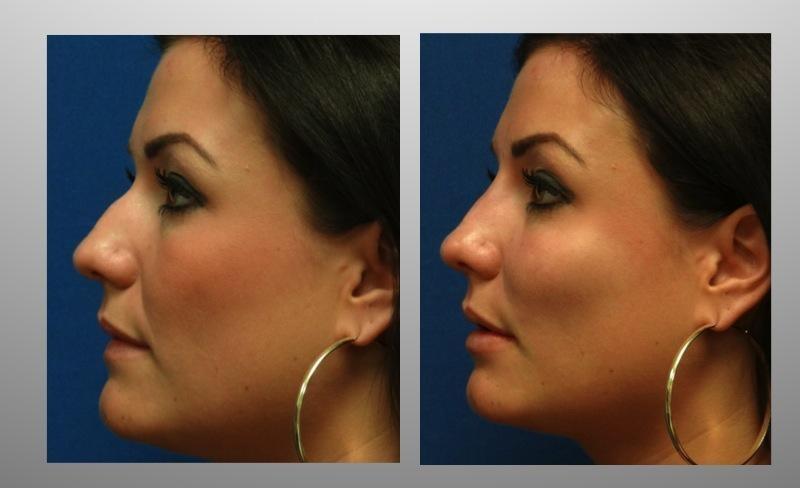 Коррекция носа и устранение носогубных складок