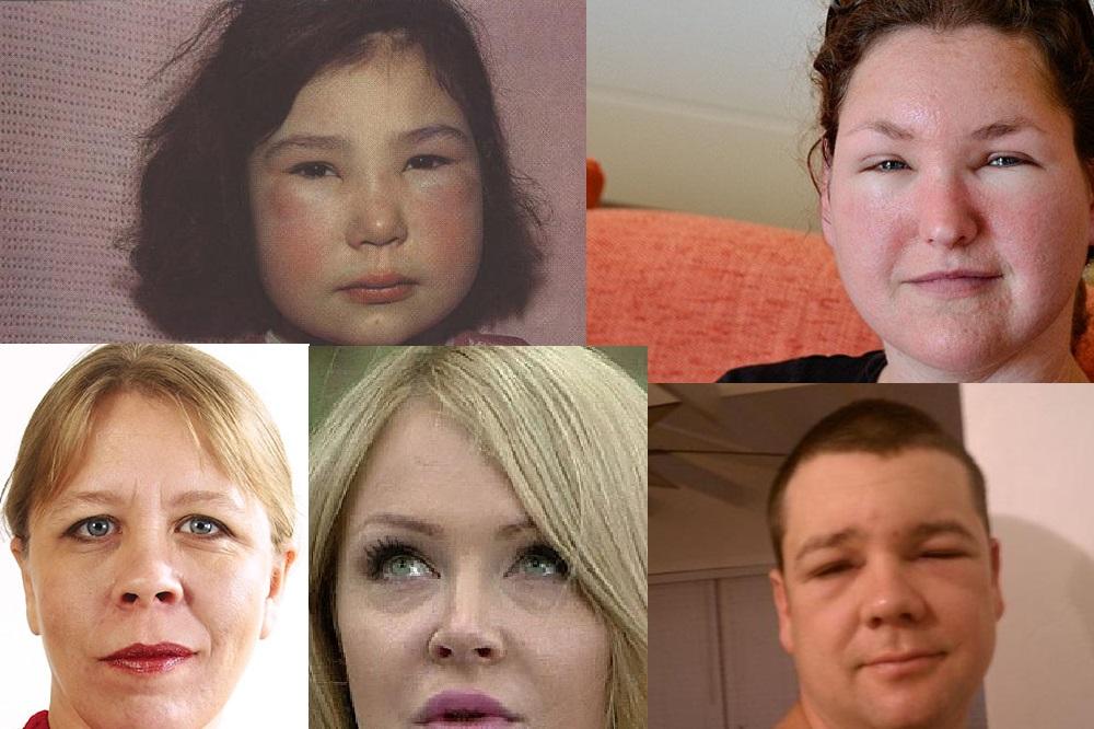 Пастозность может быть симптомом серьезных заболеваний