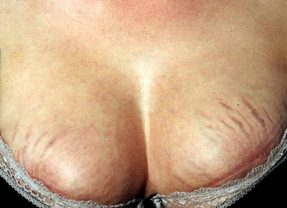 Пора спасать грудь от растяжек