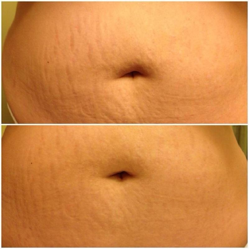 Процедура применительна для кожи лица и тела