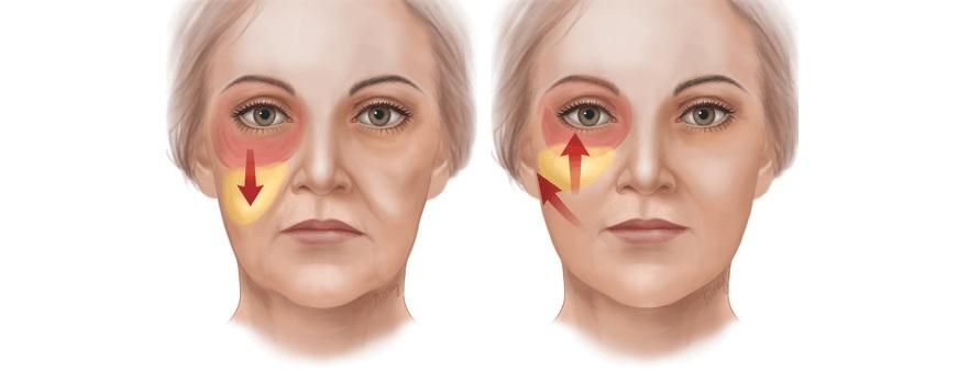 Процедура рекомендуется при опущении уголков глаз