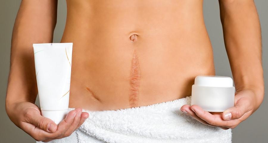 Келоидные рубцы появляются на малоподвижных участках кожи