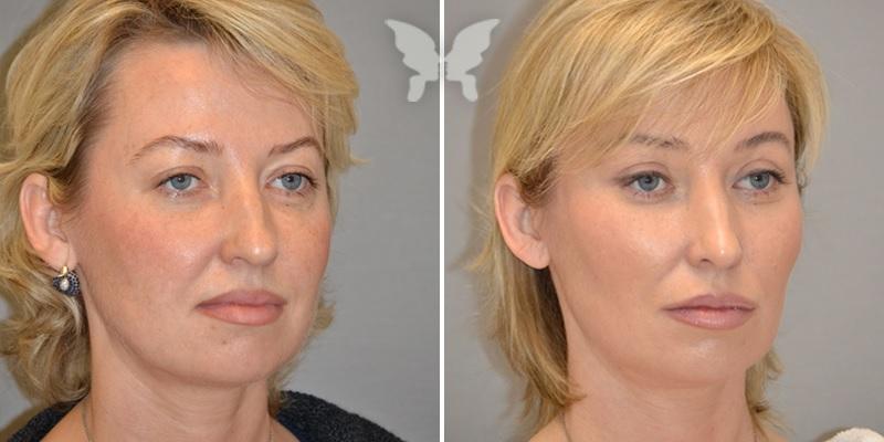 Контурная пластика лица, включая щеки