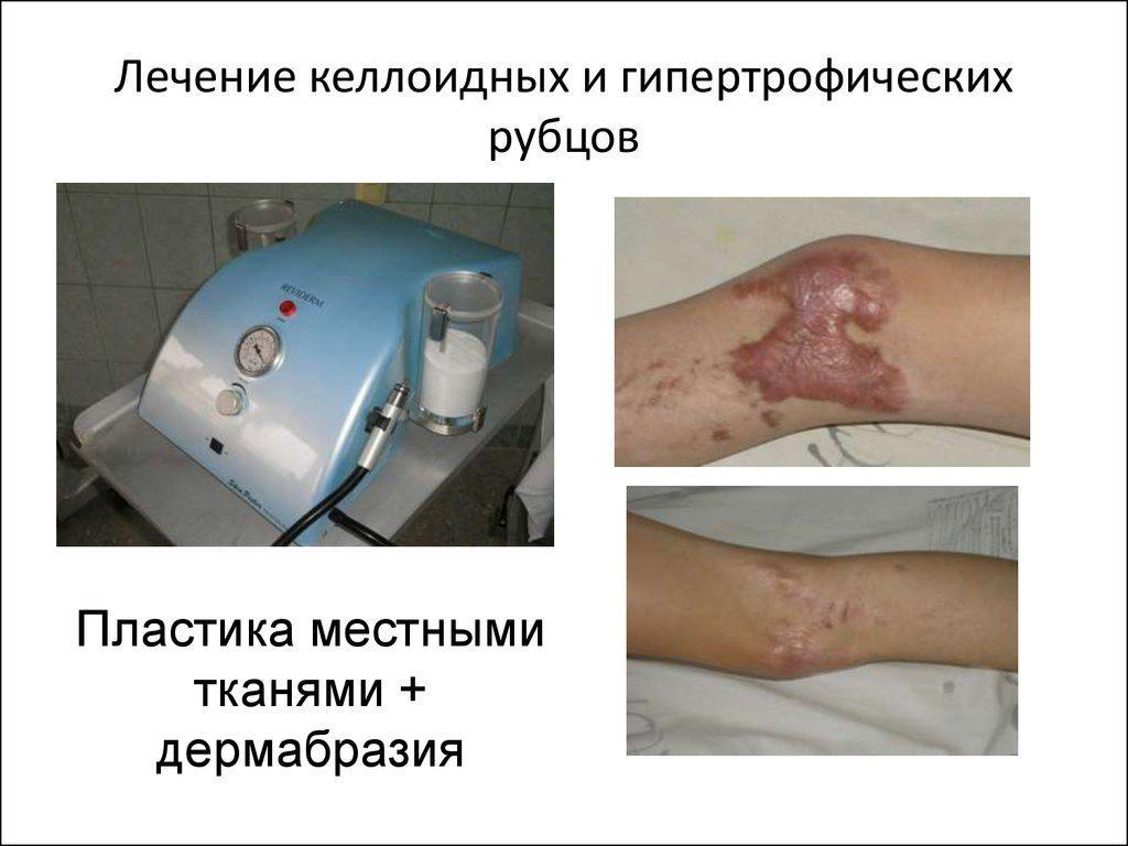 Пластика - один из методов лечения келоидных рубцов