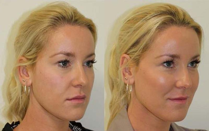 Коррекция скул филлерами фото до и после