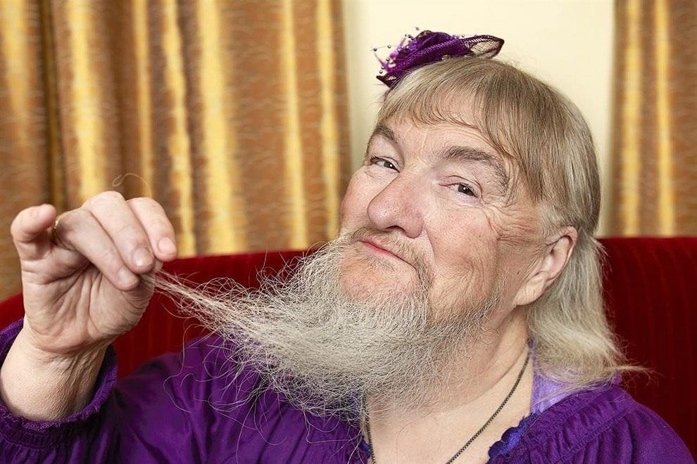 Жительница США уверяет, что первые волоски в бороде появились во время менопаузы