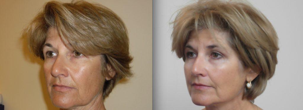 Заметное омоложение кожи лица и шеи