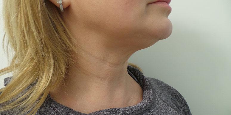 морщинки на шее после 30 лет