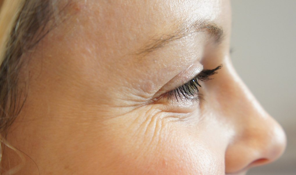 морщинки вокруг глаз после 30