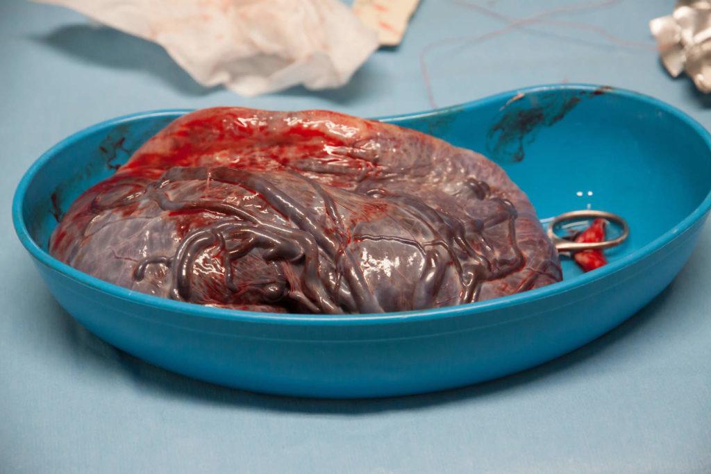 так выглядит плацента человека